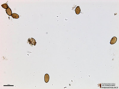 Paragonimus westermanii eggs, fecal float