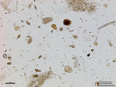 Schistosoma mansoni eggs, fecal float